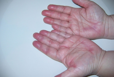 Hand-foot syndrome